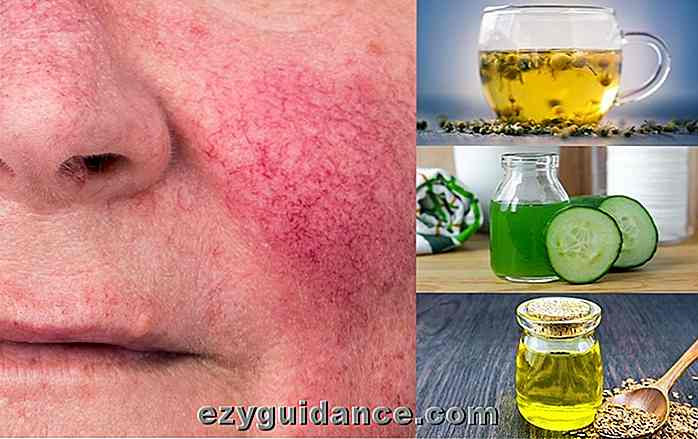 Wie behandelt man Rosacea: 12 Home Remedies, die funktionieren