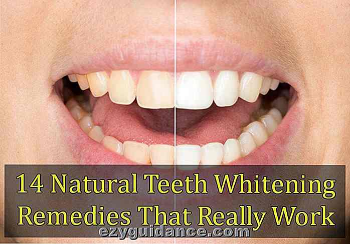 14 Natural Teeth Whitening Remedies, die wirklich funktionieren